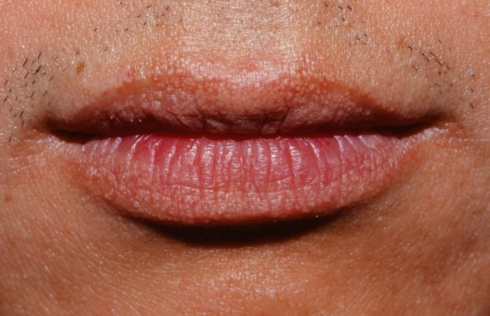 11 Tips To Prevent And Treat Fordyce Spots On Lips Small Bumps