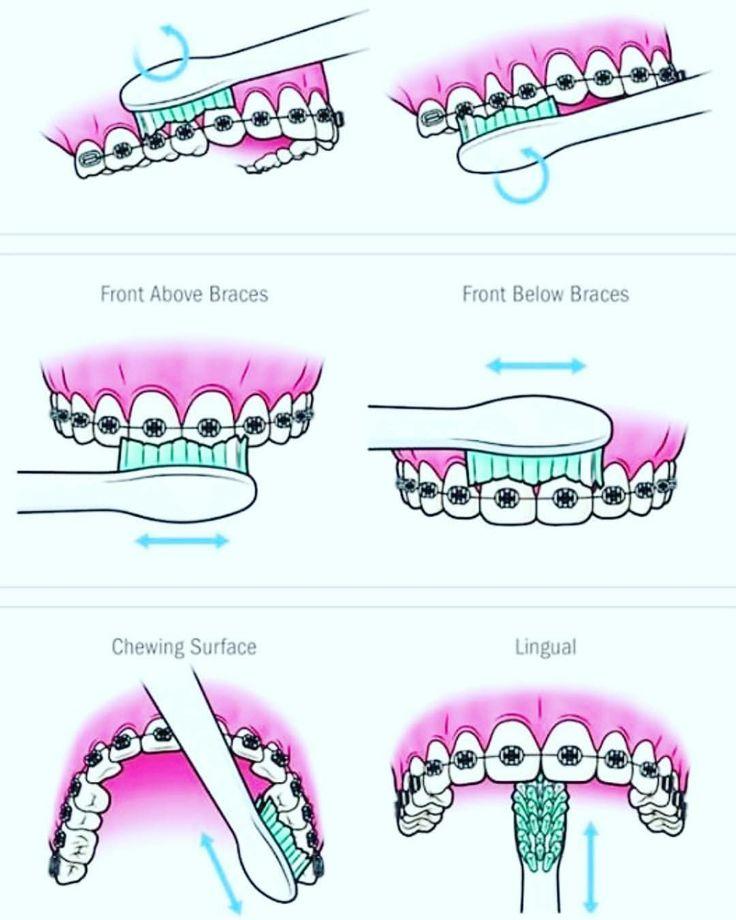Dental-Spa By K & F. Recuerda...... que la limpieza dental es dos veces al año. Agenda tu cita hoy (664)685.00.58 #dentalspabyKF