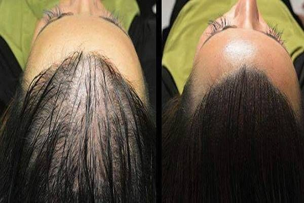 Ha ezt kipróbálod, mindenki csodálkozni fog, mitől nőtt meg ilyen gyorsan a hajad