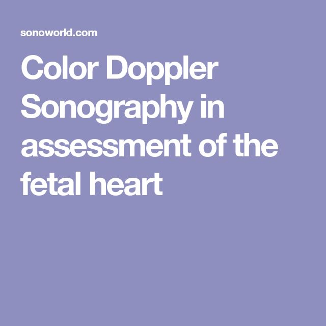 27 best Diagnostic Medical Songraphy images on Pinterest Med - sonographer resume