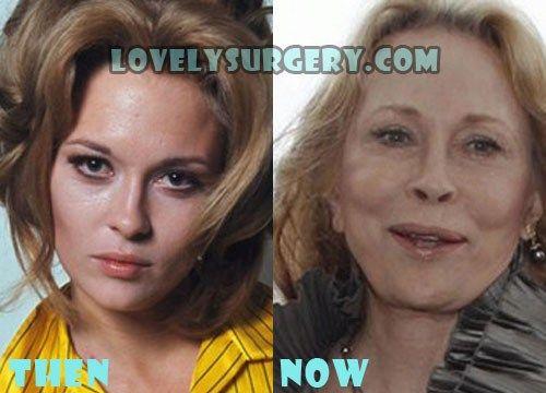 Faye Dunaway Plastic Surgery