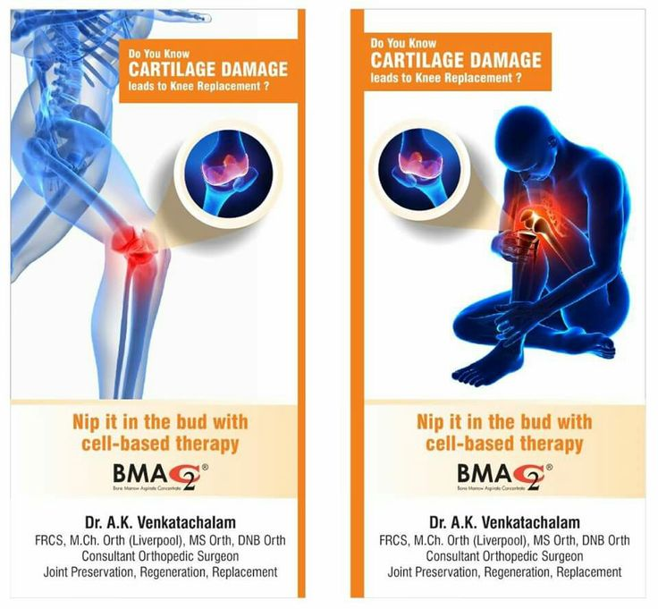 Stem Cell Treatment Knee Arthritis In India Visit Www