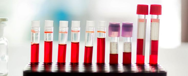 New Blood Test For Alzheimer's Is So Precise It Could Predict It 30 Years Ahead It was accurate in 90% of patients tested.