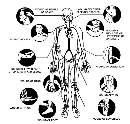 """Digital pressure (often called """"pressure points"""") is an alternative method to control bleeding. This method uses pressure from the fingers, thumbs, or hands to press at the site or point where a main artery supplying the wounded area lies near the skin surface or over bone. This pressure may help shut off or slow down the flow of blood from the heart to the wound and is used in combination with direct pressure and elevation. It may help in instances where bleeding is not easily controlled…"""