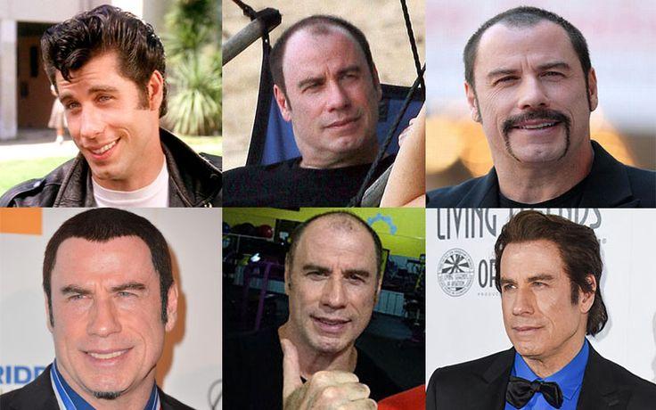 Los problemas capilares de Jon Travolta   Centros Beltrán