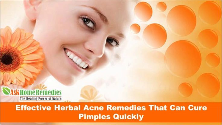 Dear friends in this video we are going to discuss about effective herbal acne remedies that can cure pimples quickly. You can find more details about Golden Glow capsules at http://www.askhomeremedies.com/acne-herbal-treatment.htm If you liked this video, then please subscribe to our YouTube Channel to get updates of other useful health video tutorials.