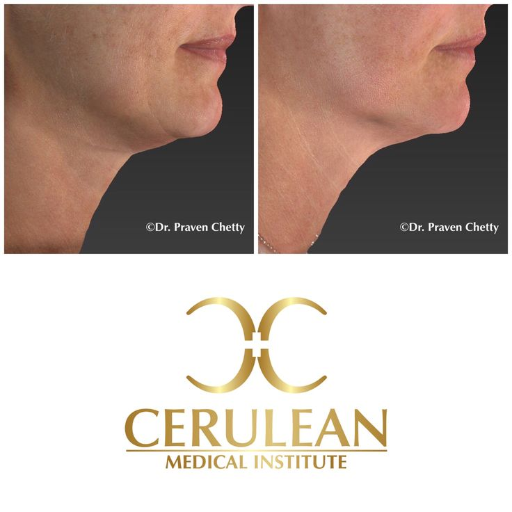 Skin tightening with improved texture and tone by Dr. Praven Chetty at Cerulean Medical Institute in Kelowna, BC.  Note the non-surgical wrinkle reduction as well as the enhanced jawline in this lovely client. #SkinTightening #Wrinkles #NonSurgical #Rejuvenation #Cosmetic #Dermatology #DrPravenChetty #CeruleanMedicalInstitute #Kelowna #BC