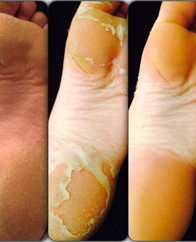 Baby foot is gross, real, and TOTALLY effective