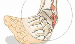 Wanneer u de voet omslaat, dan kunnen de gewrichtsbanden rond het enkelgewricht uitrekken of zelfs scheuren. Dit noemt men een verstuiking of verzwikking.