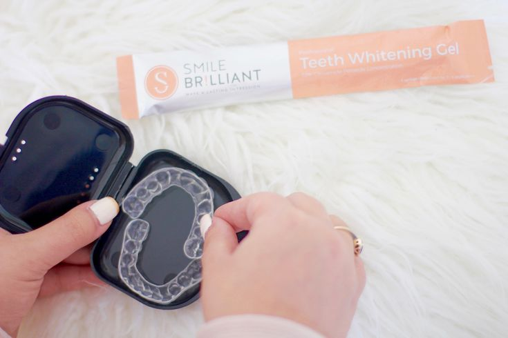 home teeth whitening kit, how to whiten your teeth at home, missyonmadison, melissa tierney, teeth whitening, smile brilliant, bright smile, dentist, teeth whitening kit, pearly whites, teeth whitening system, giveaway, contest, la blogger, beauty blogger, smile brilliant reviews,