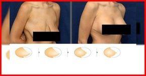 Vous avez un problème avec vos seins qui perdent leur élasticité ? Ne vous gênez pas voici un remède 100% naturel et qui vous donnera un résultat instantané ! Plusieurs facteurs peuvent engendrer l'affaissement des seins, comme l'allaitement, l'âge, le tabagisme, l'instabilité pondérale… Pour finir définitivement avec ce problème voici l'astuce infaillible Ingrédients 1 œuf; …