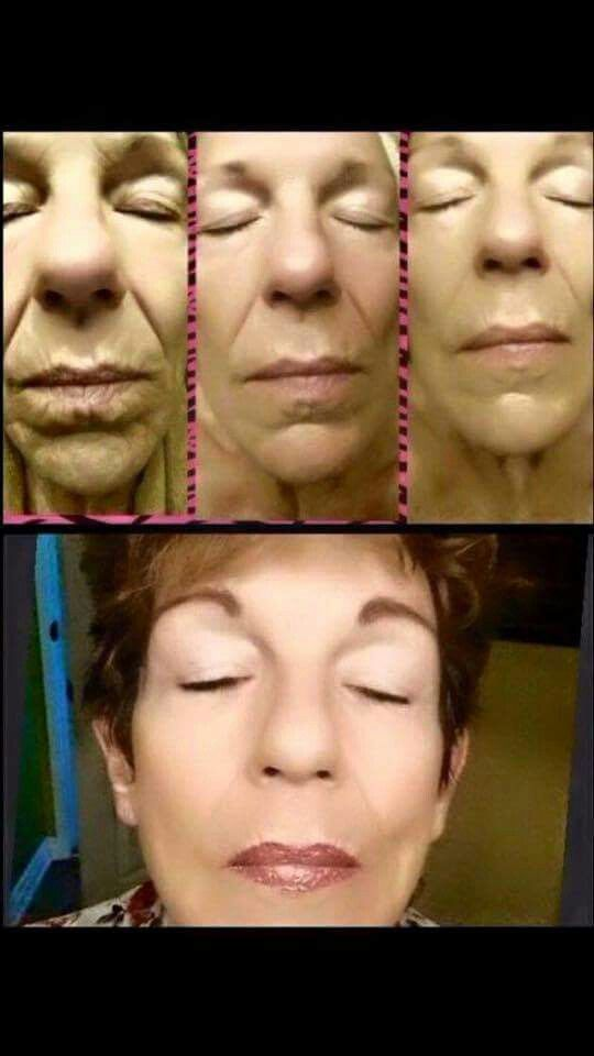 Would you just look at it! :) These are some serious results with the luminesce serum/line! Contact me, visit my Facebook page in this moment international, or go to www.inthismoment.jeunesseglobal.com