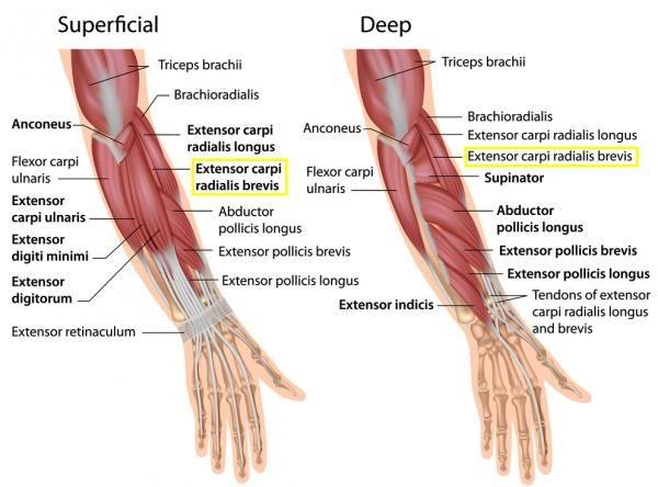 Best 25+ Elbow tendonitis ideas on Pinterest
