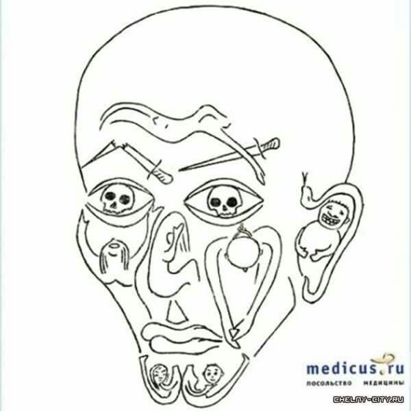 Esquizofrenia residual  Trastornos mentales