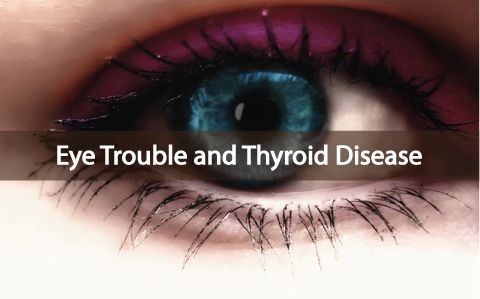 Trouble With Your Eyes? Maybe It's Thyroid Disease