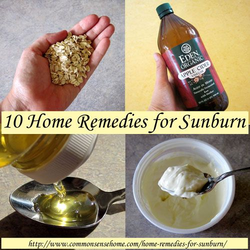 Home Remedies for Sunburn - ten remedies from apple cider vinegar to essential oils to help you heal up fast from too much summer sun.