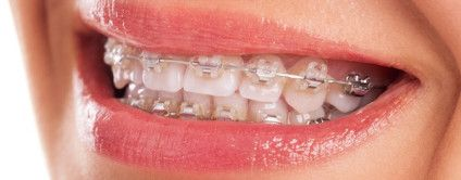 Metal, Ceramic and Clear #Braces are well available these days. But do you know which one is best for you?