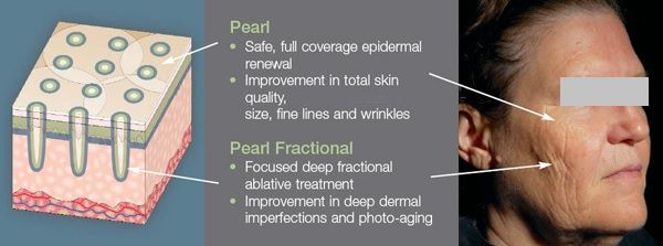 {Pearl Fractional Laser Resurfacing} Your treatment will begin by numbing your skin with a topical cream to ensure maximum comfort for you during the procedure. The laser will then utilize heat to create tiny holes deep within your skin with fractionated technology. This state-of-the-art technology allows only a small percentage of the skin to be treated at a very deep level by the laser, which decreases downtime while providing superior results.