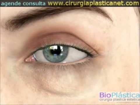 BLEFAROPLASTIA - Cirurgia Palpebras 3D Blefaroplastia