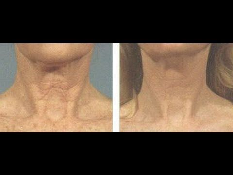 Face Workout Solutions For Turkey Neck: Yoga Facial Exercises For Firmin...
