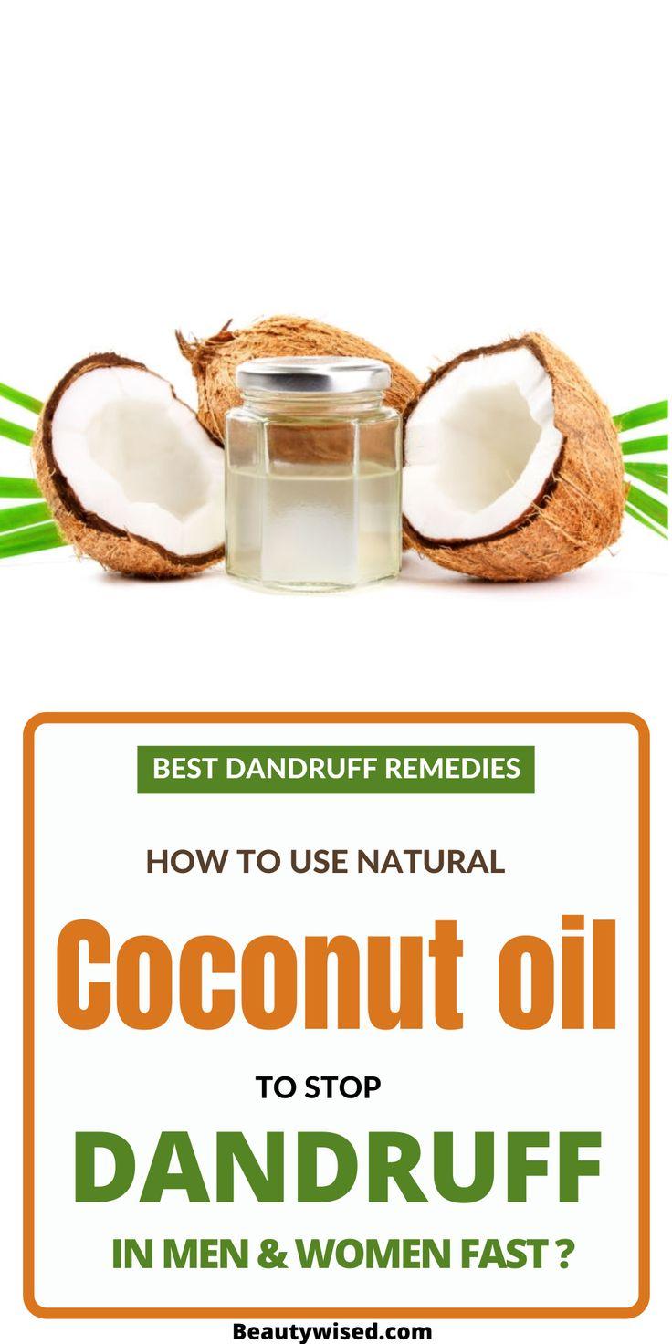 Coconut oil as dandruff home remedy 5 coconut oil