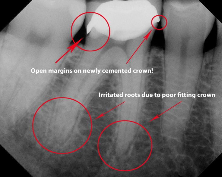 bad crown xray - I have several ill-fitting crowns in my mouth .  The cusps are too high which causes severe tooth pain.  :(