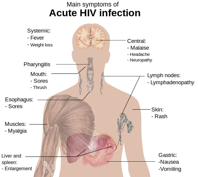 top 25+ best hiv symptoms ideas on pinterest | what is hiv, what, Sphenoid