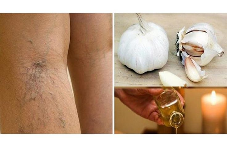 Varicose veins are enlarged, weakened, and visible veins under the skin surface, usually in a dark purple or blue color. It is often caused by various different factors, like genetics, obesity, pregnancy, age, prolonged standing, or straining. When varicose veins appear, they are usually treated with compression techniques, such as the use of compression stockings,...