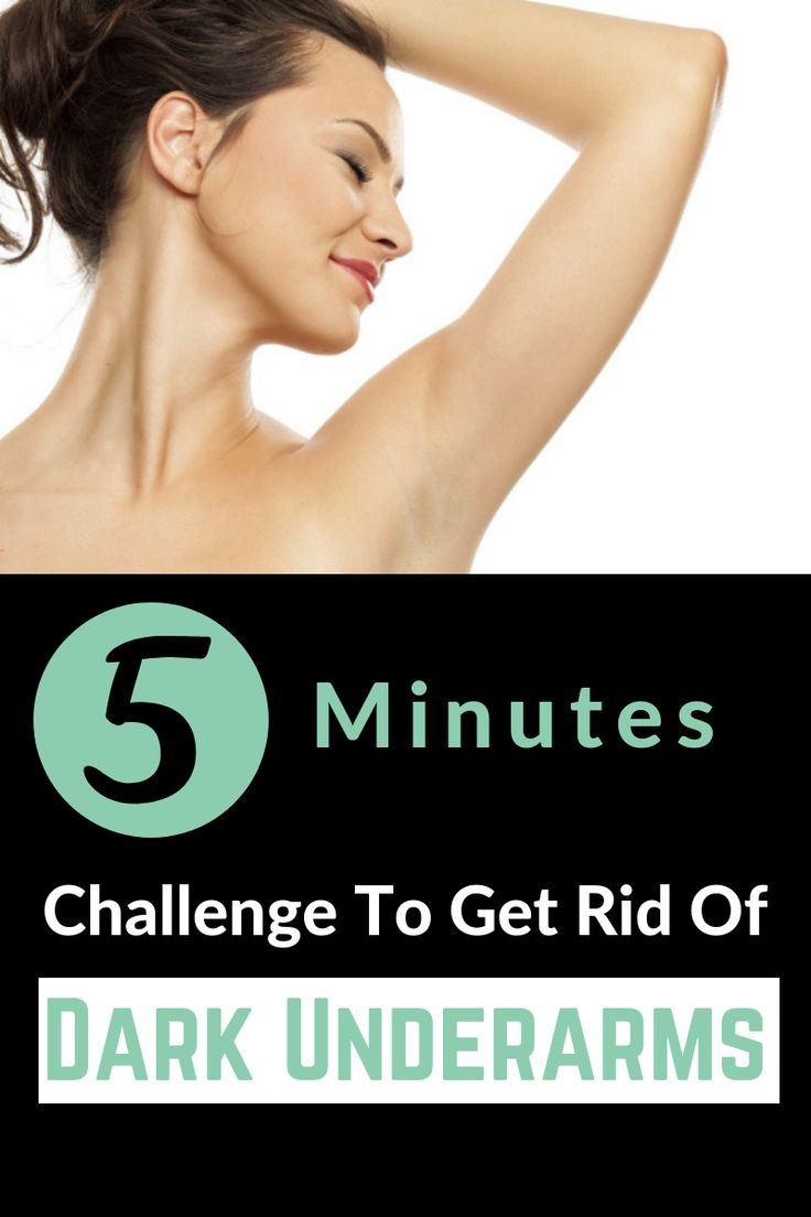 You need just 1 ingredient and 5 minutes to get rid of dark underarms