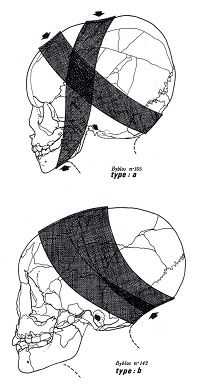 Method of wrapping determines skull shape.  Drawings of skulls discovered in the Phoenician necropolis at Byblos (from Özbek 1974, fig. 1)