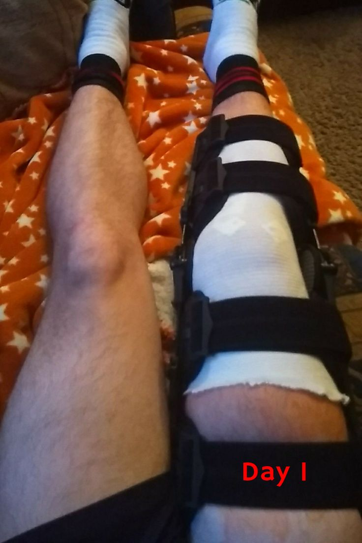 how do you sleep after meniscus surgery