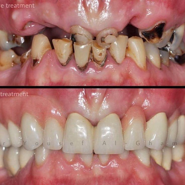 Upper telescopic denture and lower fixed dental prosthesis (FDP)... . #bestofProsth#dental#dentistry#dentallab#cosmeticdentistry#dentistryw#implants#implantes#odontologia#odontologiaestetica#dentist#prosthodontist#zahnmedizin#restorativedentistry#odontolove#dentalschool#dentalcases#cosmeticdentist#odontologo#dentalassistant#dentalphotography#stomatology#dentalcare#implantologia.#periodontics#orthodontics#dentistas Cards  cardsclinic.com