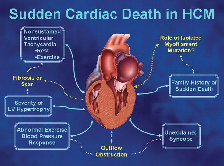 Pathophysiology of Hypertrophic Cardiomyopathy