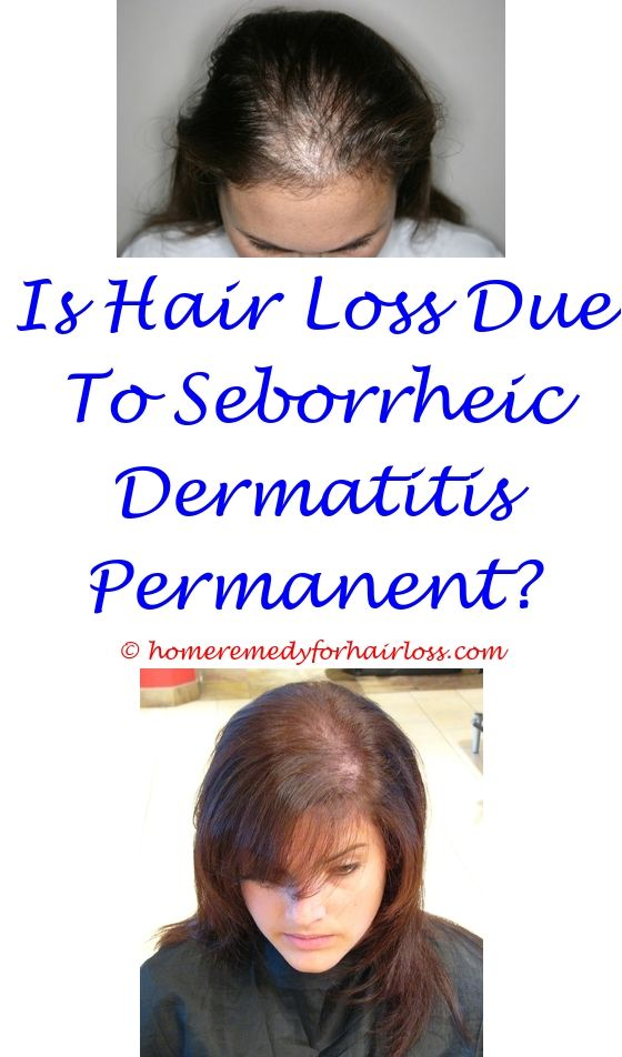can trazodone cause hair loss - best anti hair loss shampoo singapore.loreal feria starry night and hair loss yeast on scalp hair loss hair loss generic adderall 4333957110