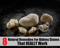 Top 8 Natural Remedies for Kidney Stones That Really Work