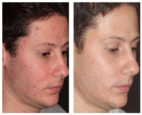 9 best images about Microdermabrasion Before and After Pictures on ...