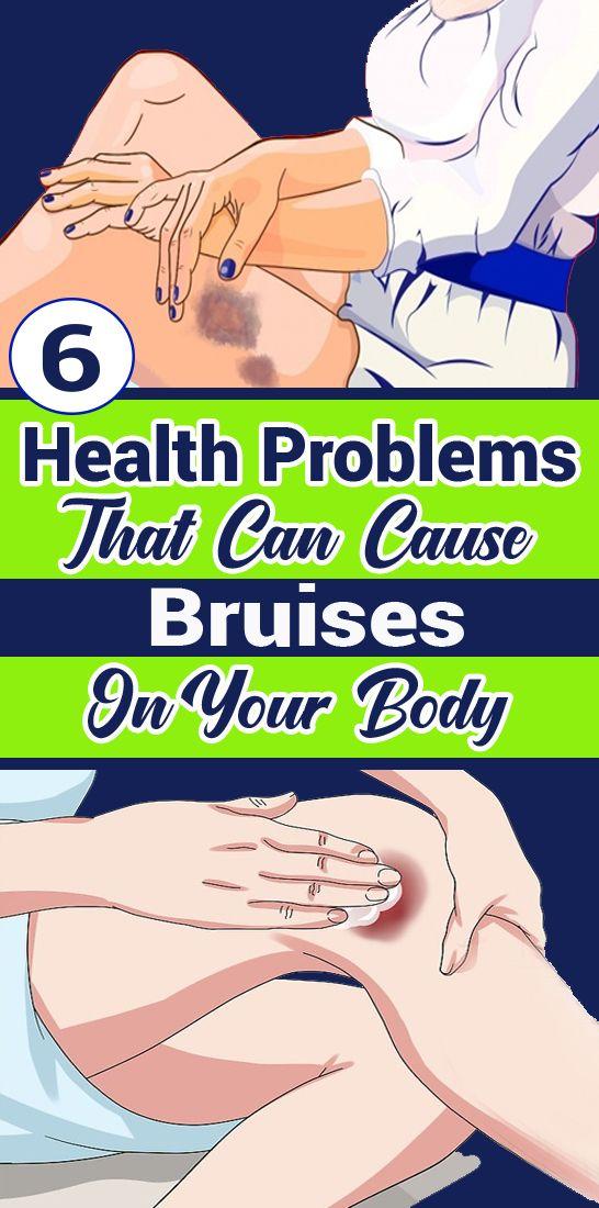 6 Gesundheitsprobleme, die zu Blutergüssen am Körper führen können   – ISS Health