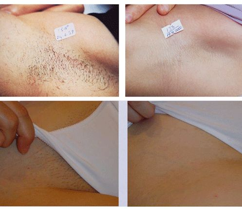 south florida laser hair removal before and after ...