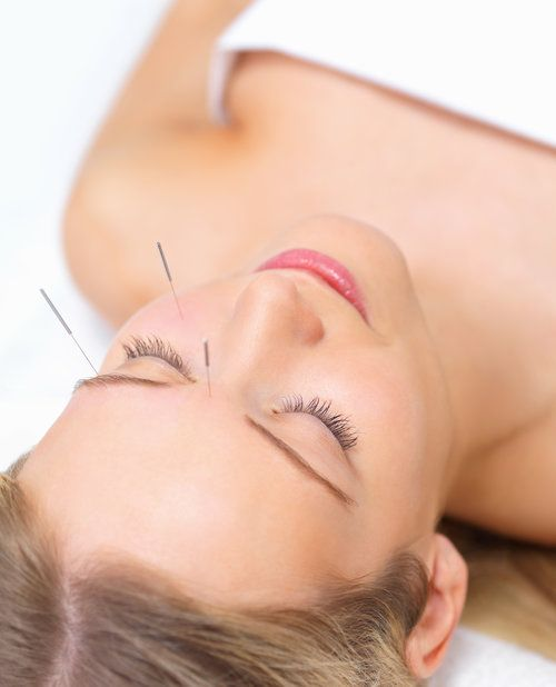 Get effective #Non - #surgical #Facial #Acupuncture treatment in Vaughan. Read the benefits of facial acupuncture may include!  http://essentialbalance.ca/cosmetic-acupuncture-facelift-toronto/