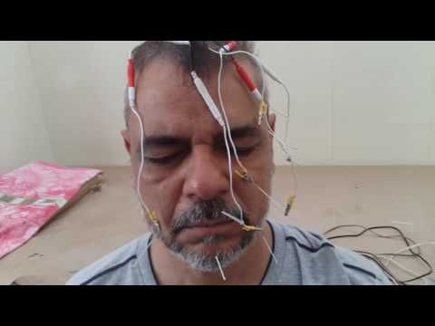 Acupuncture for bells palsy - YouTube