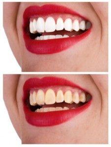 6 Common Cosmetic Dental Procedures Explained http://ift.tt/2s2m2ZC