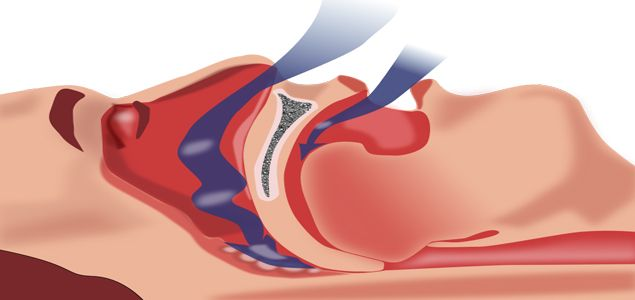 Central Sleep Apnea Causes, Symptoms, Diagnosis, Treatment
