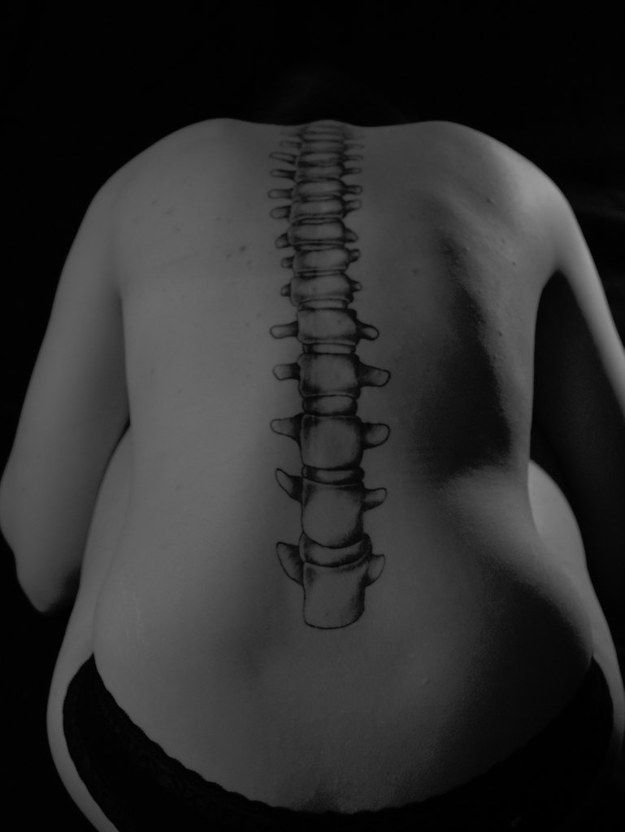 This straight spine to celebrate recovery from a scoliosis surgery.