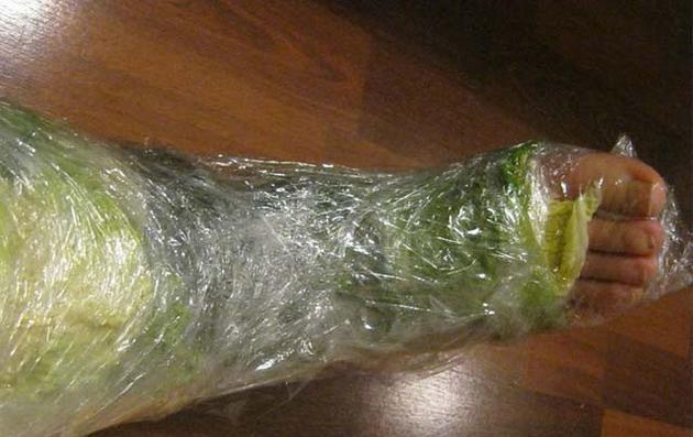Vücudunuza lahana yapraklarını neden sarmalısınız? - Sağlık Haberleri