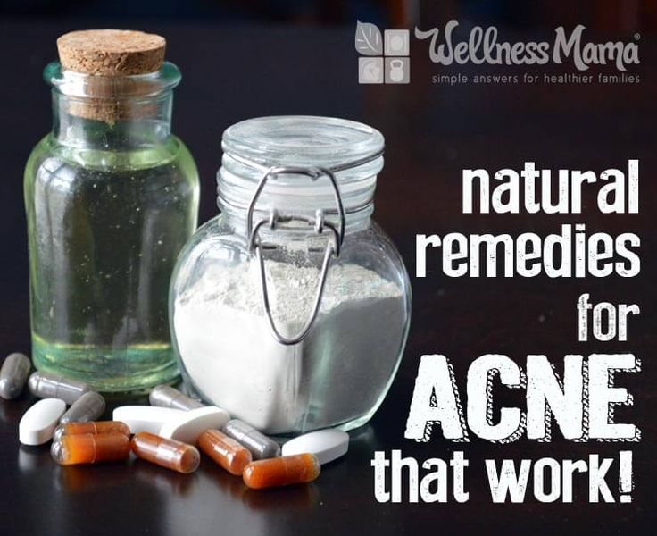Natural remedies for acne that really work Natural Remedies for Acne