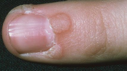 It is not easy trying to find out how to treat warts on your own. In fact, the majority of people doesn't know how to get rid of these awful skin blemishes.