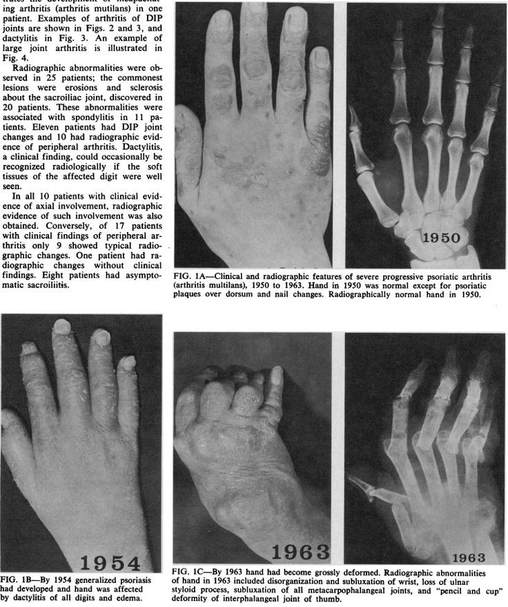 72 best psoriatic arthritis images on pinterest, Skeleton