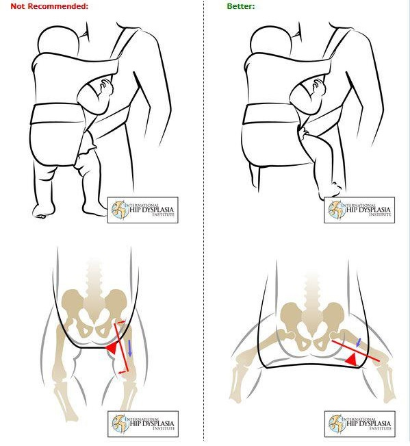 The International Hip Dysplasia Institute's Guide to Hip-Healthy Positioning in Baby Carriers: http://www.hipdysplasia.org/developmental-dysplasia-of-the-hip/prevention/baby-carriers-seats-and-other-equipment/