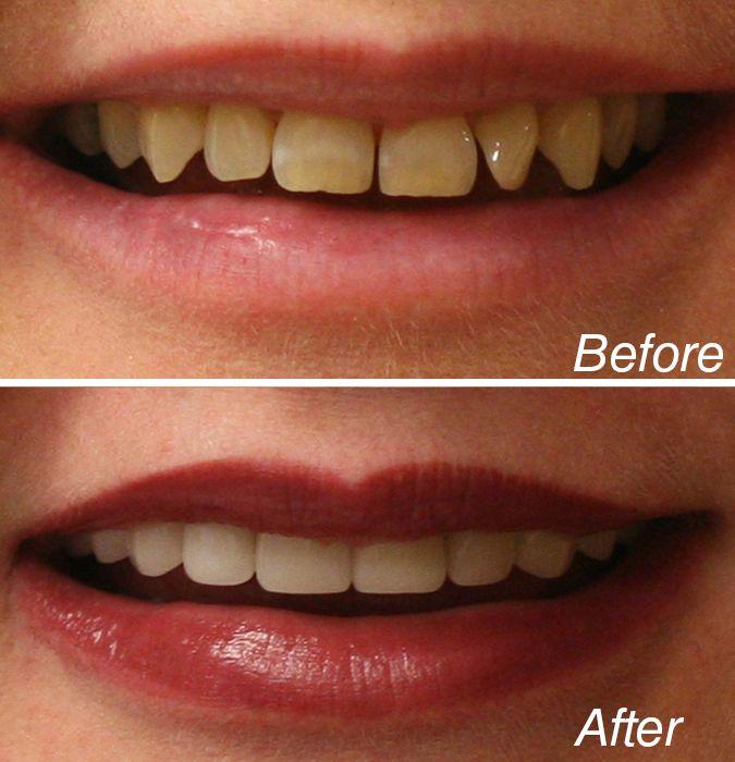 sutton advanced cosmetic dentistry