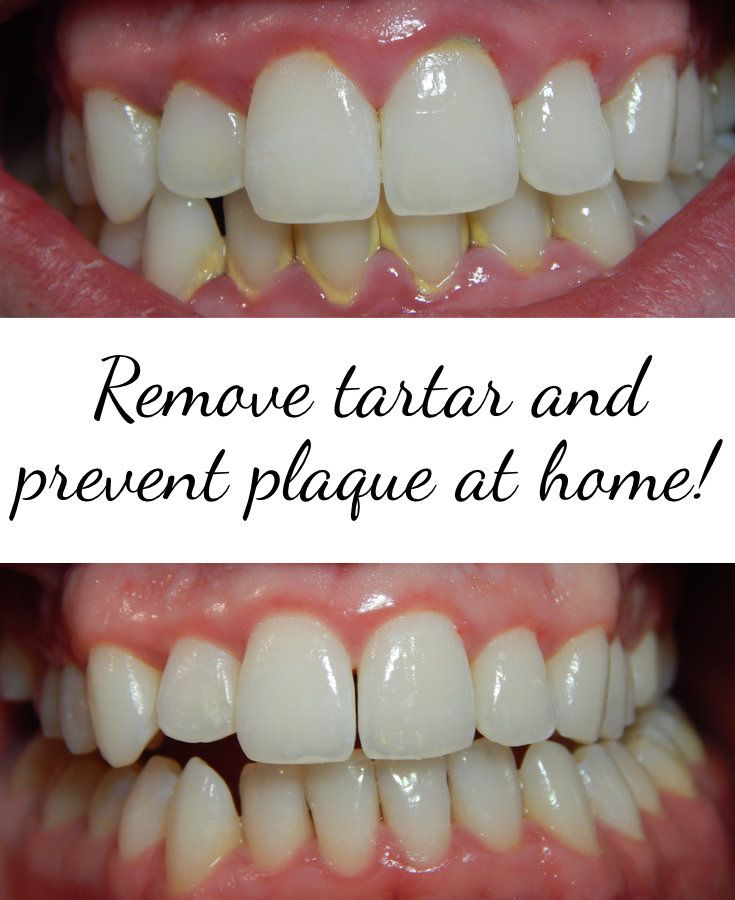 how to get rid of tartar on teeth at home